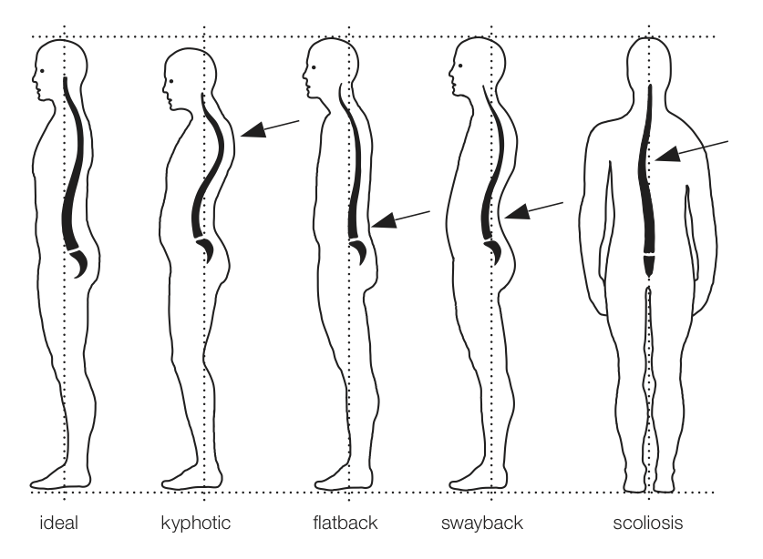 principles-of-good-posture-different-postures